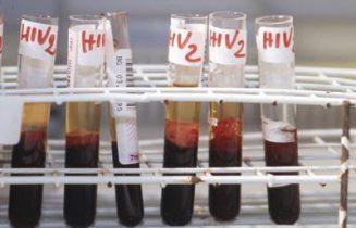 hiv_sangue_provette_fg
